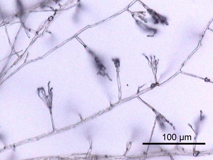 A closer look at fungal hyphae. This example is from the fungus penicillium, used to produce the antibiotic penicillin (Credit: GFDL)