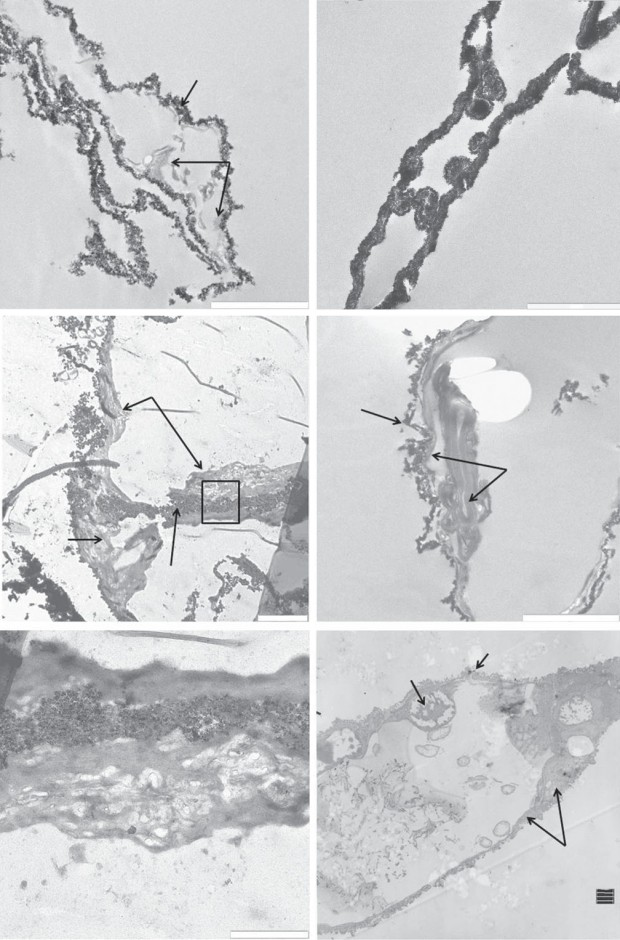 TEM images of (a,c,e) T. rex (MOR 1125) vessels, (b,d ) B. canadensis (MOR 2598) vessels and (f ) ostrich vessels. Tyrannosaurus rex vessels show iron particles infiltrating a relatively amorphous 'organic' layer (arrows, a,c). Higher magnification (c) shows a structure similar in morphology to an endothelial cell nucleus seen in ostrich vessel (EN, f ), protruding into the lumen of an isolated vessel. No chromatin or nuclear membrane is visible in the dinosaur structures, but these features are visible in the ostrich. (e) Higher magnification of the area within the box in (c) shows variation in texture within the 'organic' layer. B. candensis vessels are more completely infiltrated with iron (b), but in some views (d ), an organic layer is still visible. The ostrich vessel (f ) shows nuclear membrane (EN) within the endothelial cell (EC). Cytoplasmic extensions make up the bulk of the vessel wall, and a TJ uniting two endothelial cells. Scale bar, 2 mm for (a–d), 1 mm for (e,f )